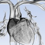 """Seminario en la ECyT: """"Análisis numérico de un modelo de onda de pulso arterial"""""""