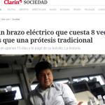 <i>Clarín</i> entrevistó al alumno de la UNSAM que creo un brazo electrónico