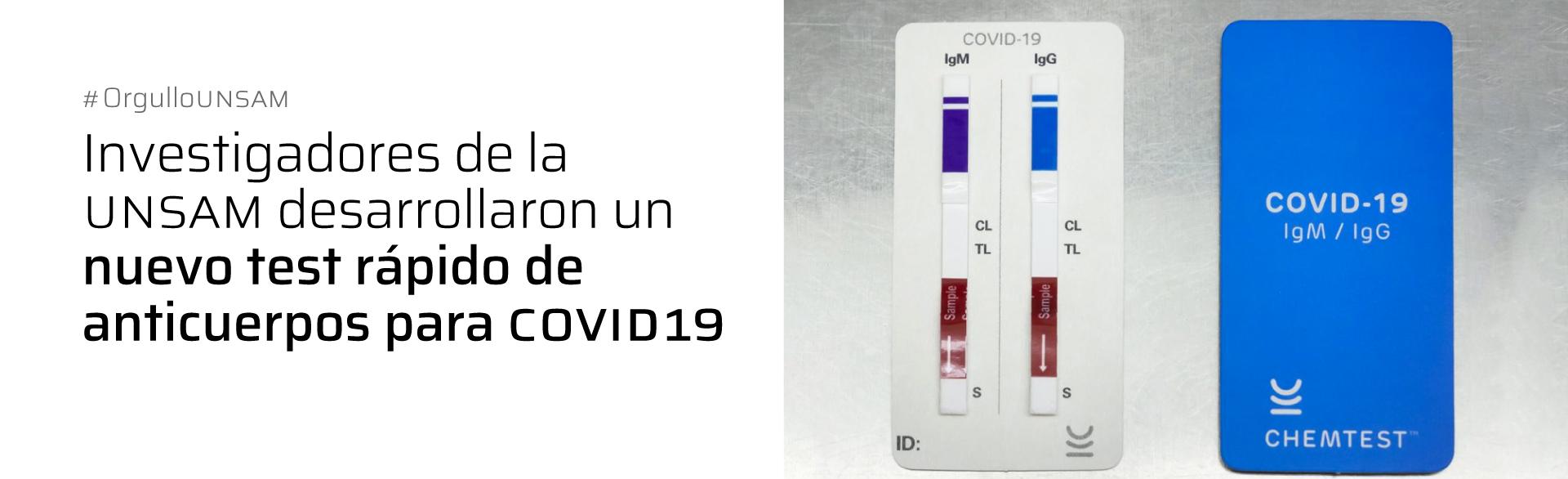 INVESTIGADORES DE LA UNSAM DESARROLLARON UN NUEVO TEST RÁPIDO DE ANTICUERPOS PARA COVID19